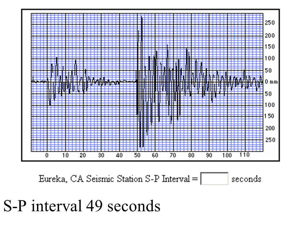 S-P interval 49 seconds