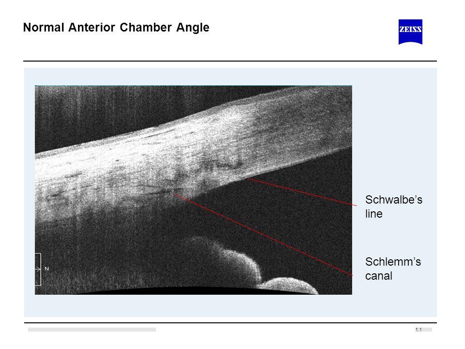 Normal Anterior Chamber Angle