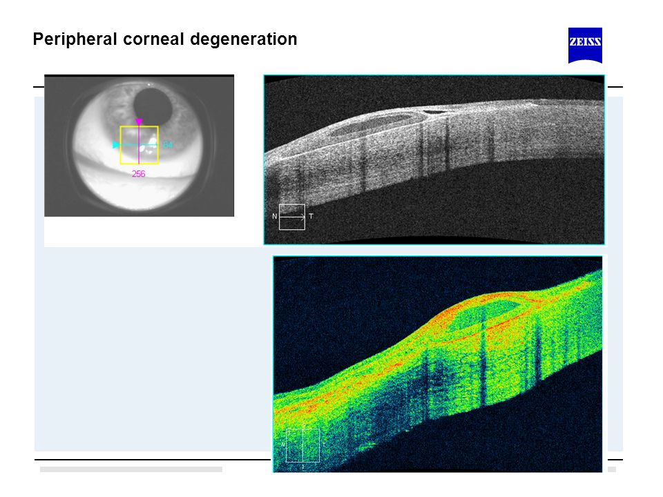 Peripheral corneal degeneration
