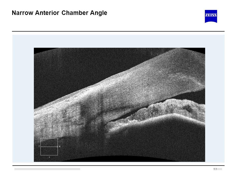Narrow Anterior Chamber Angle