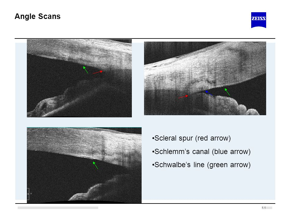 Angle Scans Scleral spur (red arrow) Schlemm's canal (blue arrow)