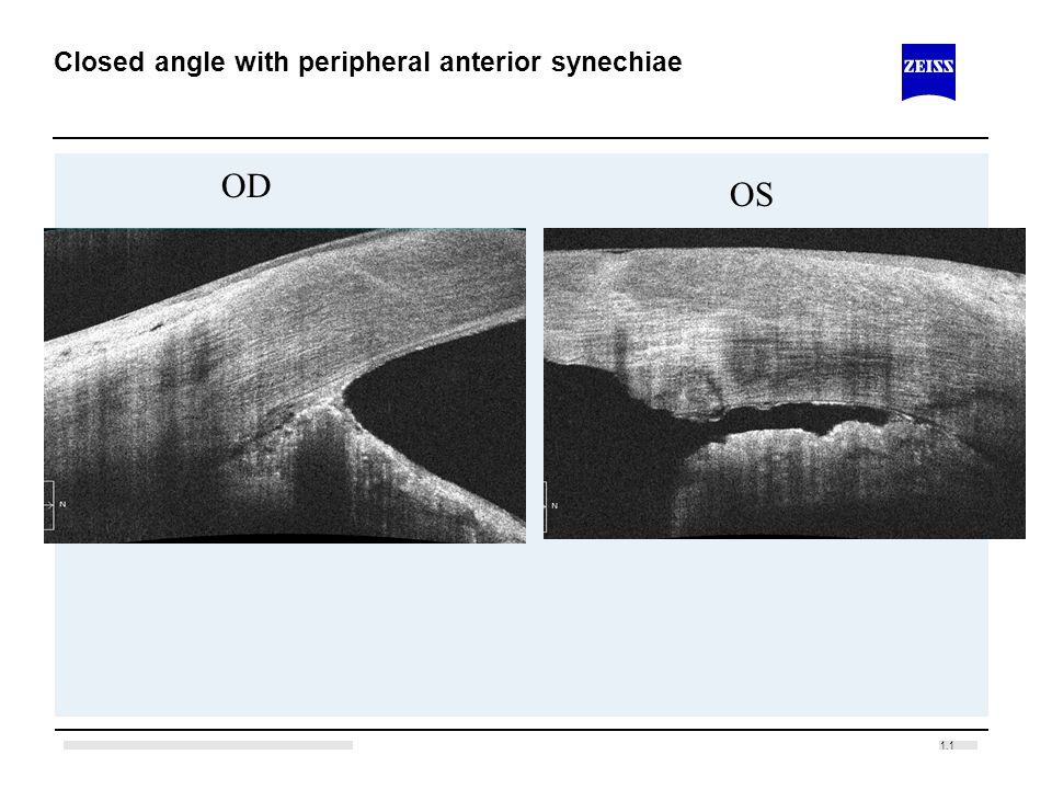 Closed angle with peripheral anterior synechiae