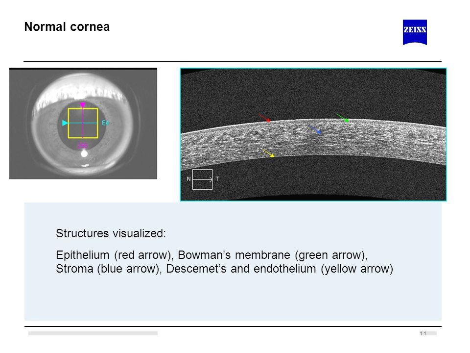 Normal cornea Structures visualized: