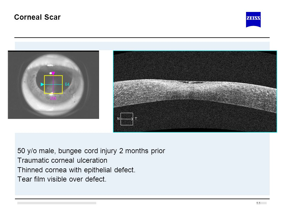 Corneal Scar 50 y/o male, bungee cord injury 2 months prior