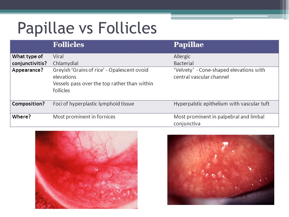 Ocular Cellulitis In Adults