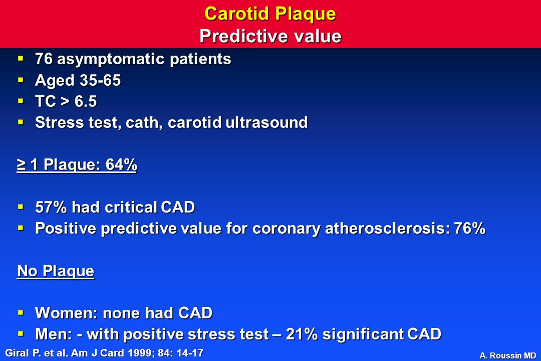 Carotid Plaque Predictive value