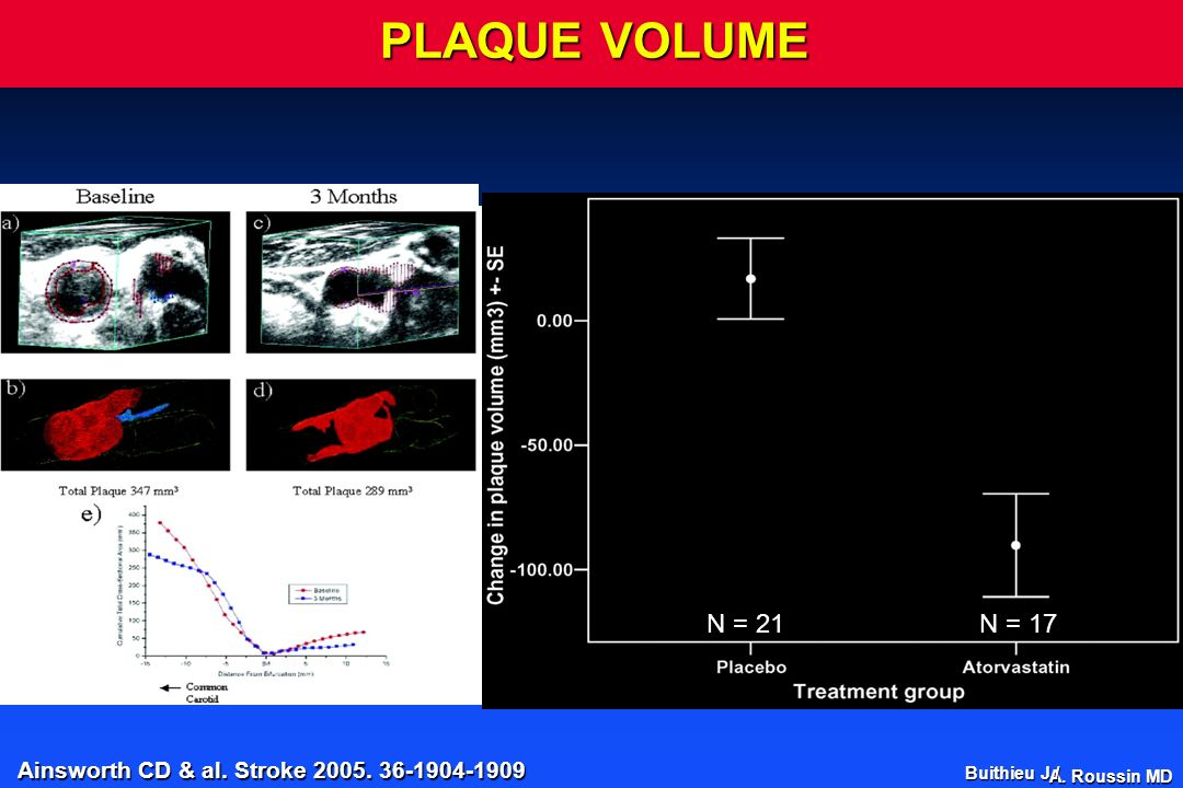 PLAQUE VOLUME N = 21. N = 17. We found that 3D US measurement of plaque progression.