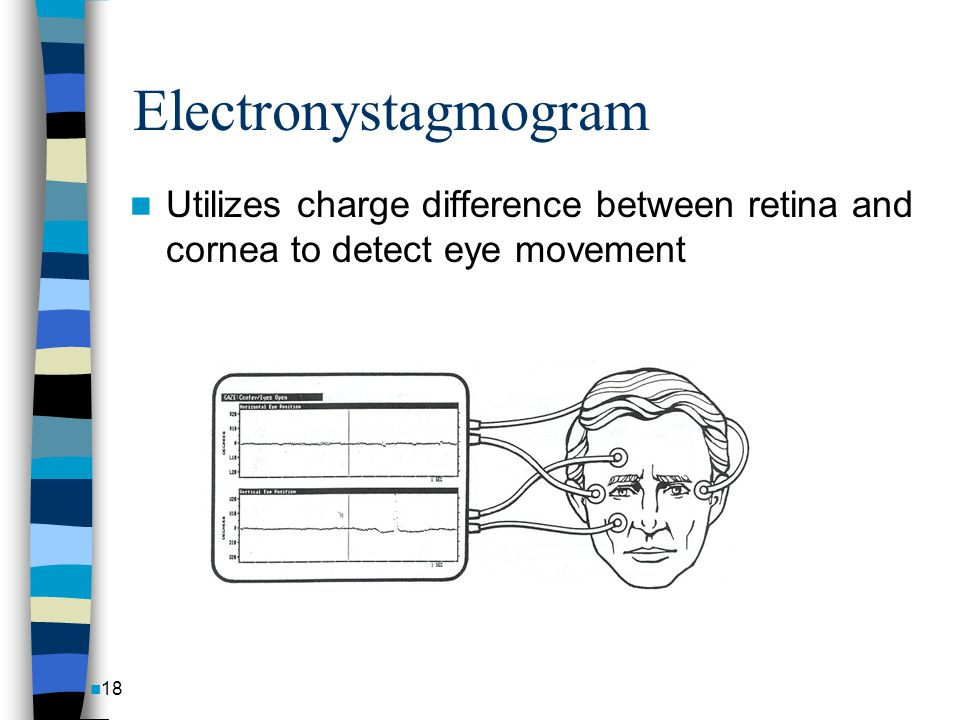 Electronystagmogram Utilizes charge difference between retina and cornea to detect eye movement