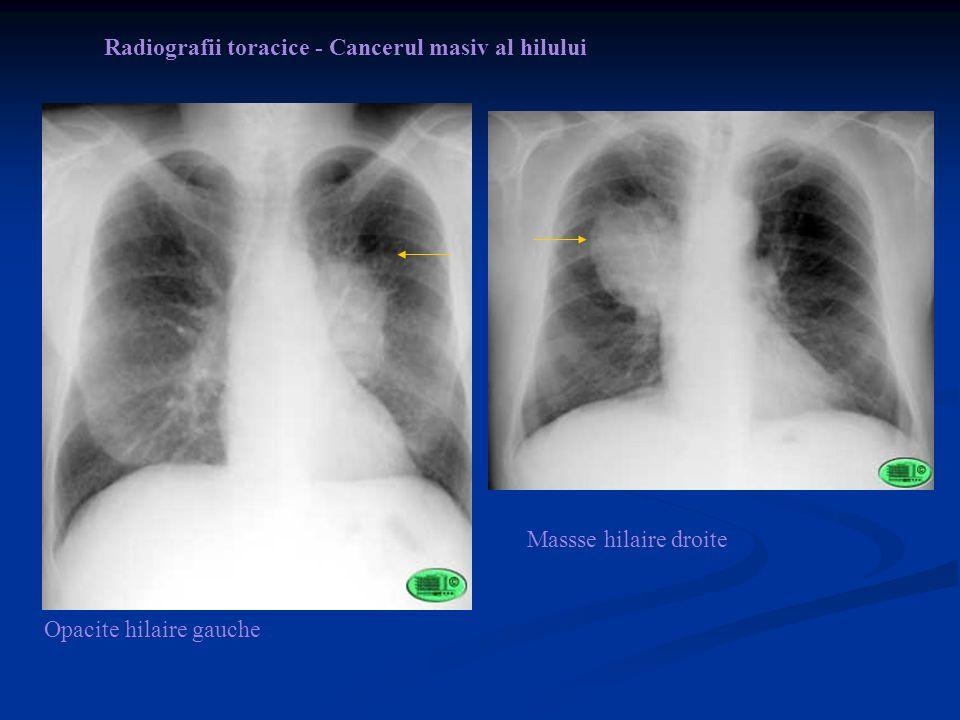 Radiografii toracice - Cancerul masiv al hilului