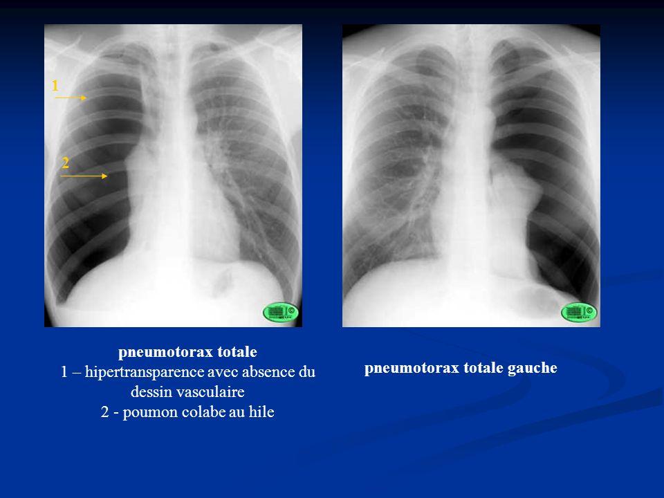 1 2. pneumotorax totale 1 – hipertransparence avec absence du dessin vasculaire 2 - poumon colabe au hile.