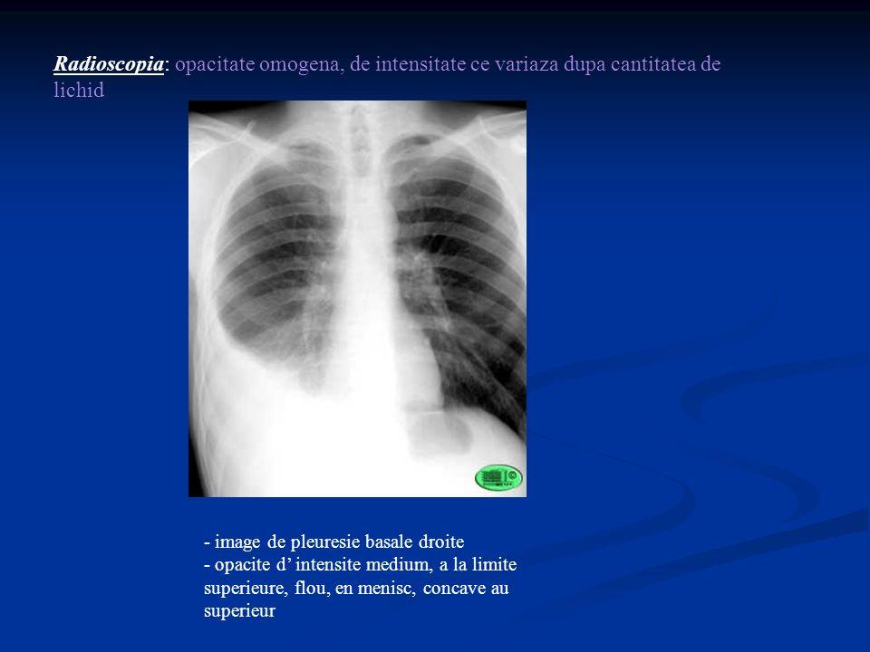 Radioscopia: opacitate omogena, de intensitate ce variaza dupa cantitatea de lichid