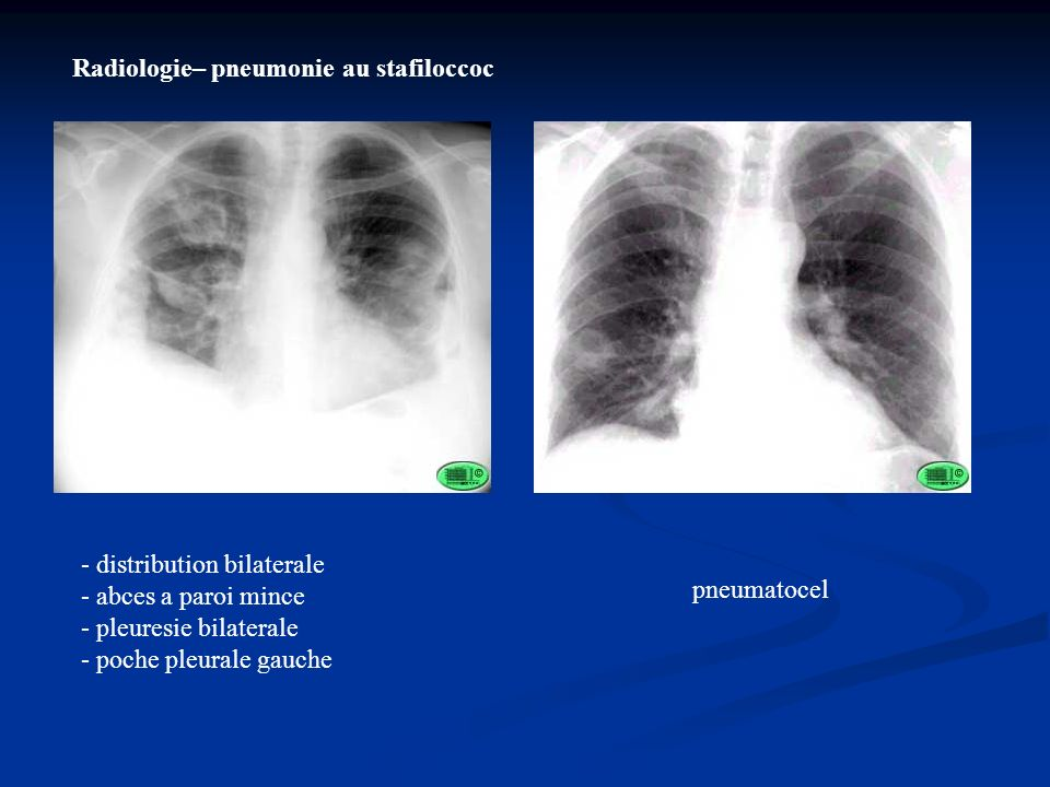 Radiologie– pneumonie au stafiloccoc