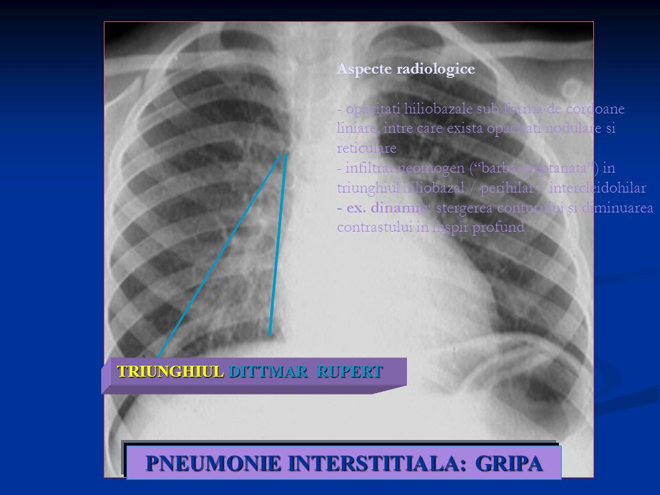 PNEUMONIE INTERSTITIALA: GRIPA