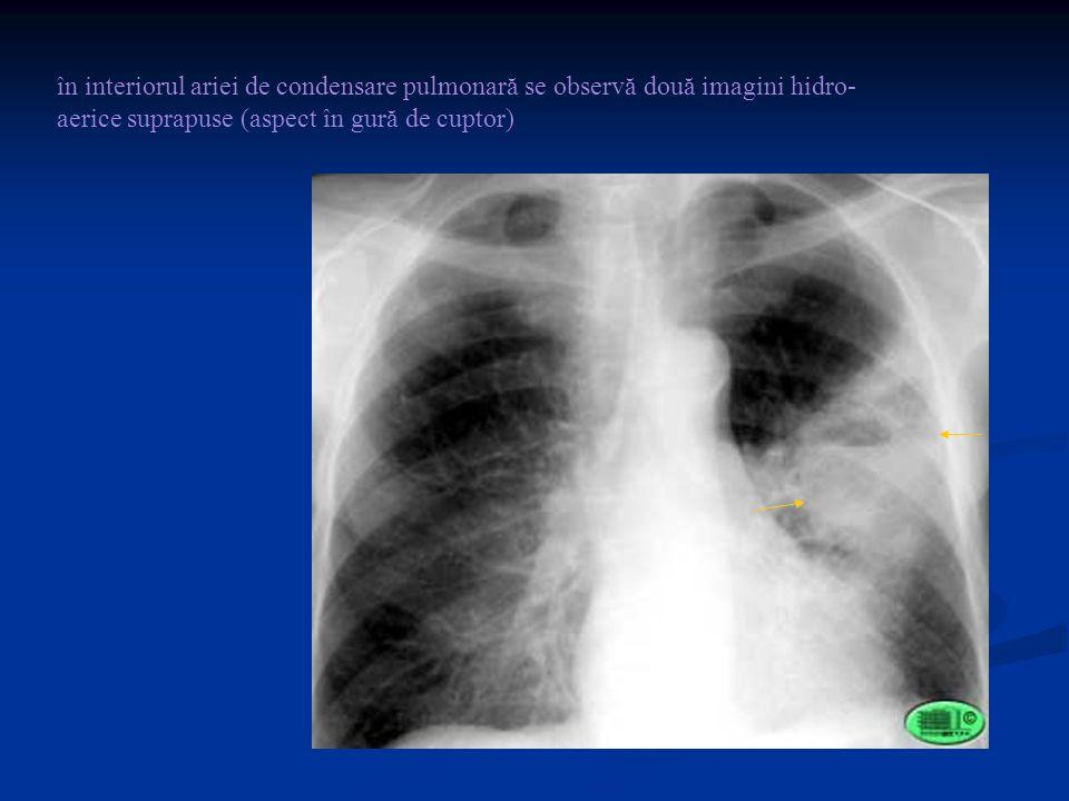 în interiorul ariei de condensare pulmonară se observă două imagini hidro-aerice suprapuse (aspect în gură de cuptor)