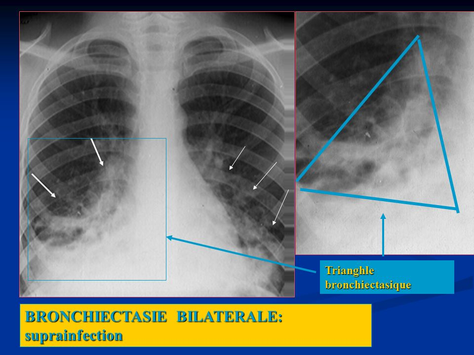 BRONCHIECTASIE BILATERALE: suprainfection