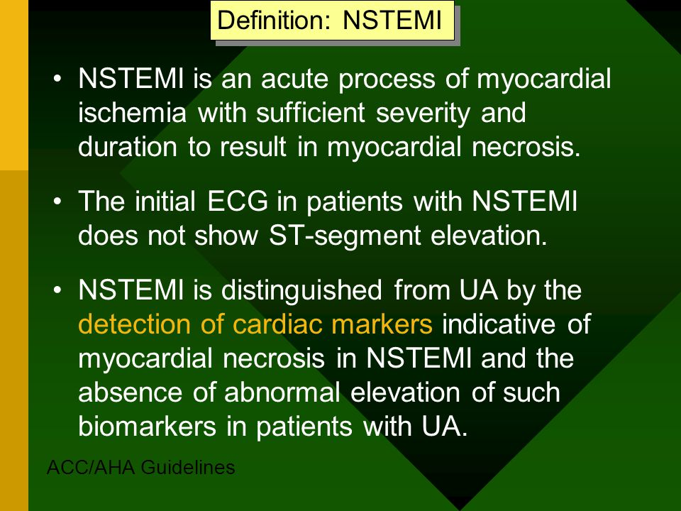 detection myocardial ischemia from ecg guidelines