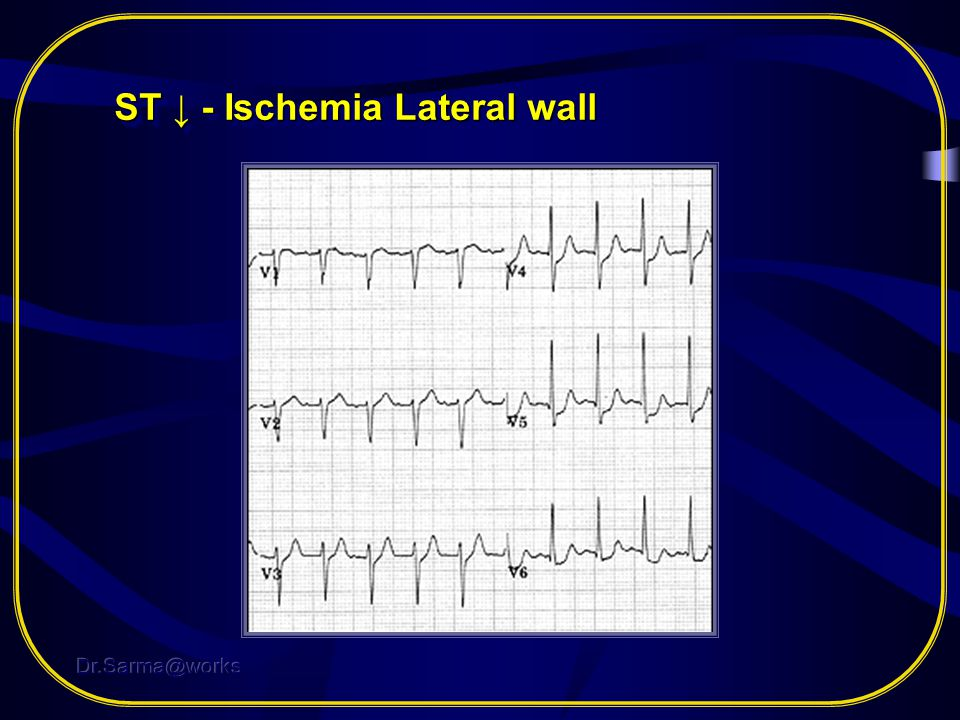 ST ↓ - Ischemia Lateral wall