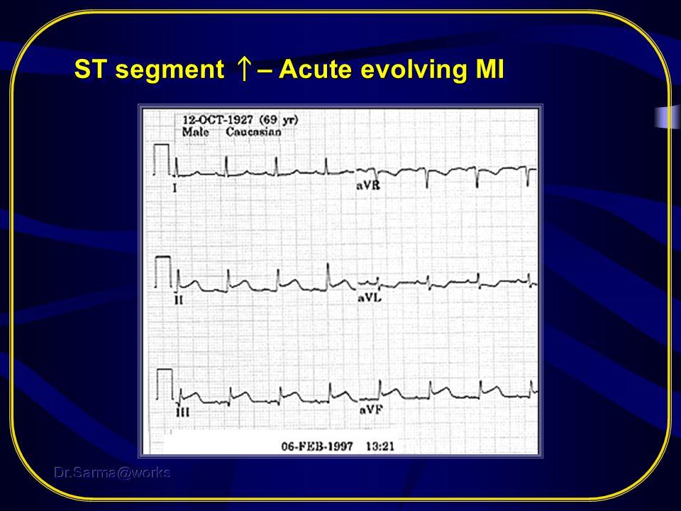 ST segment ↑– Acute evolving MI
