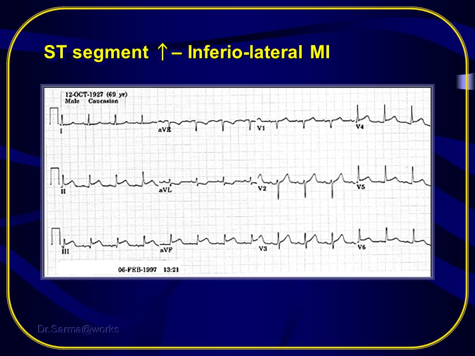 ST segment ↑– Inferio-lateral MI