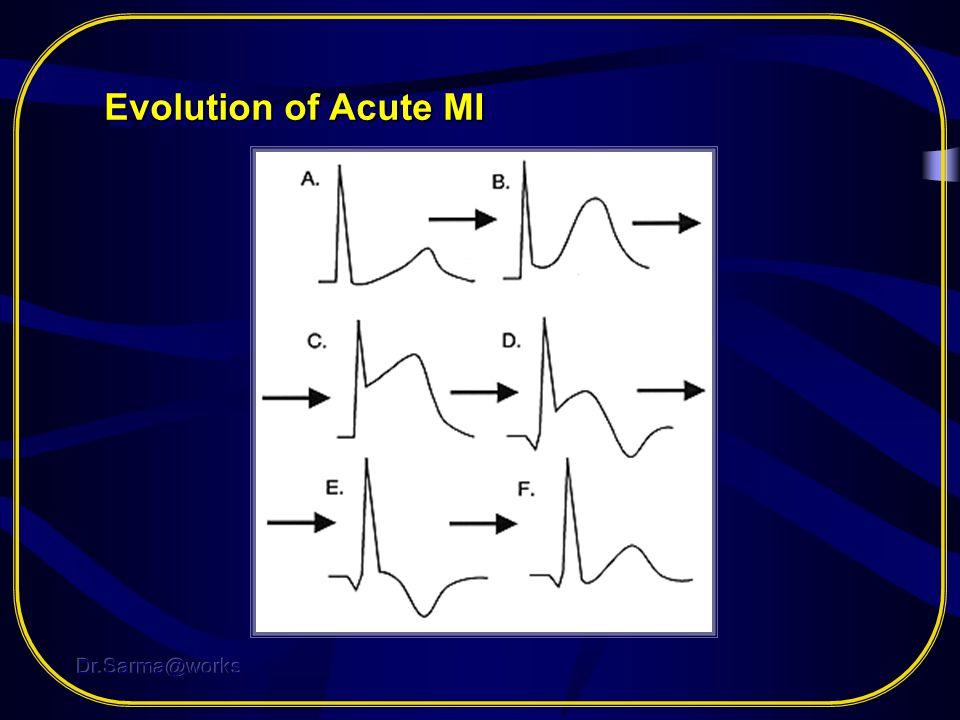 Evolution of Acute MI Dr.Sarma@works