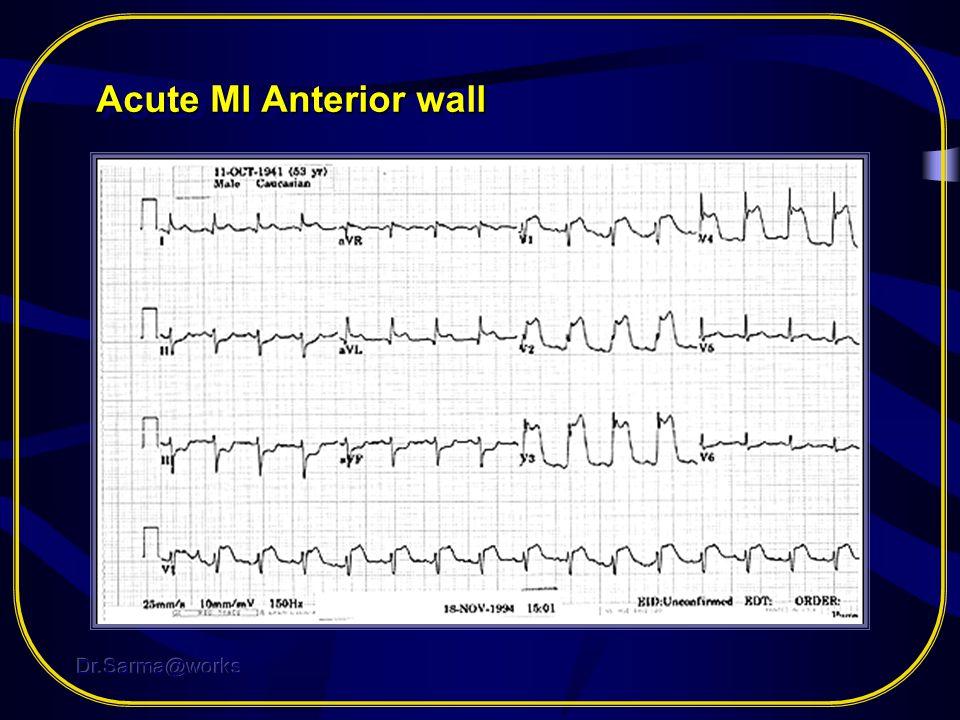 Acute MI Anterior wall Dr.Sarma@works