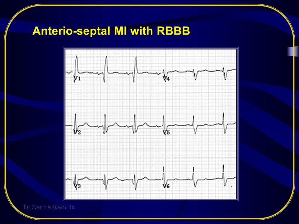 Anterio-septal MI with RBBB