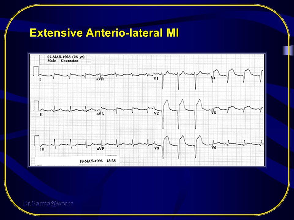 Extensive Anterio-lateral MI