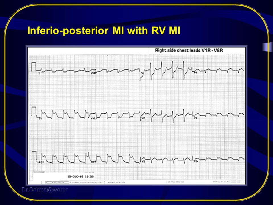 Inferio-posterior MI with RV MI