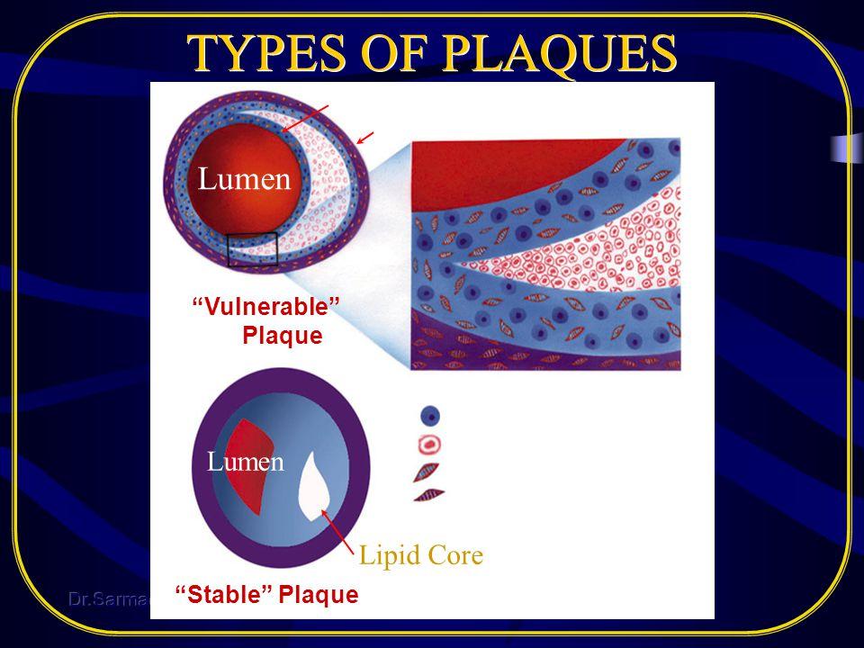 TYPES OF PLAQUES Lumen Lipid Core Fibrous Cap Media