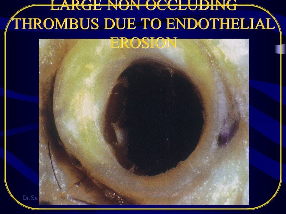 LARGE NON OCCLUDING THROMBUS DUE TO ENDOTHELIAL EROSION