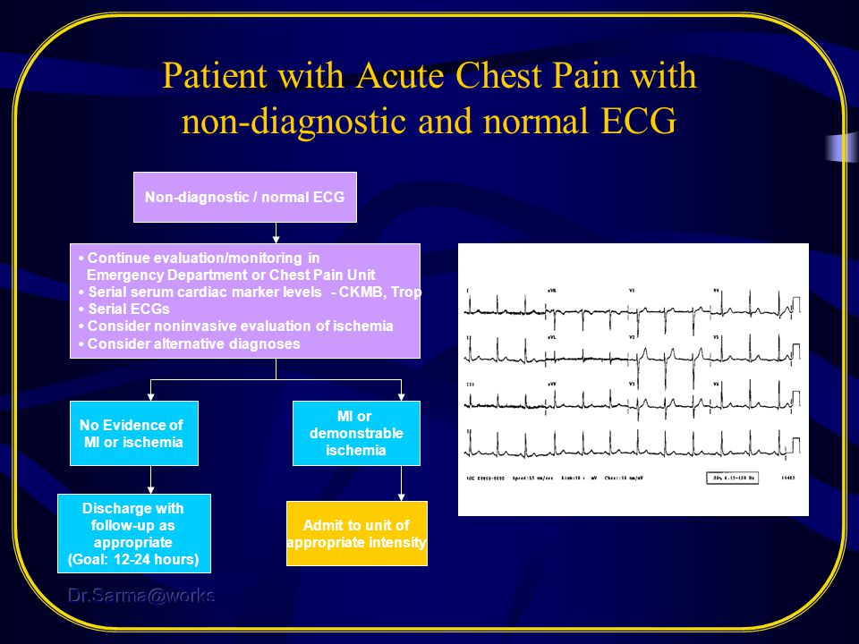 Patient with Acute Chest Pain with non-diagnostic and normal ECG