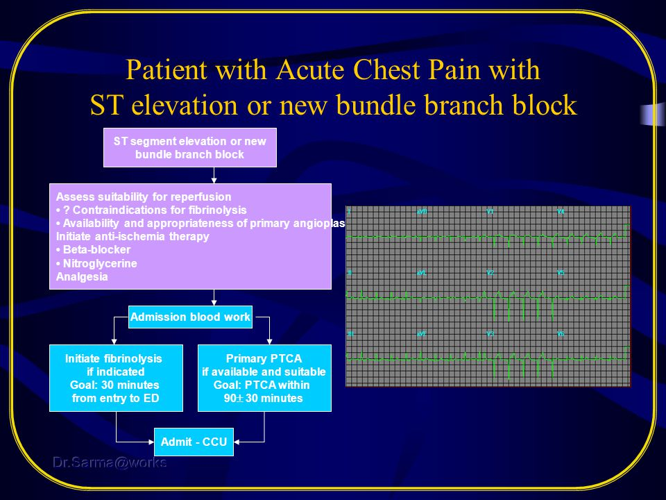 Patient with Acute Chest Pain with ST elevation or new bundle branch block