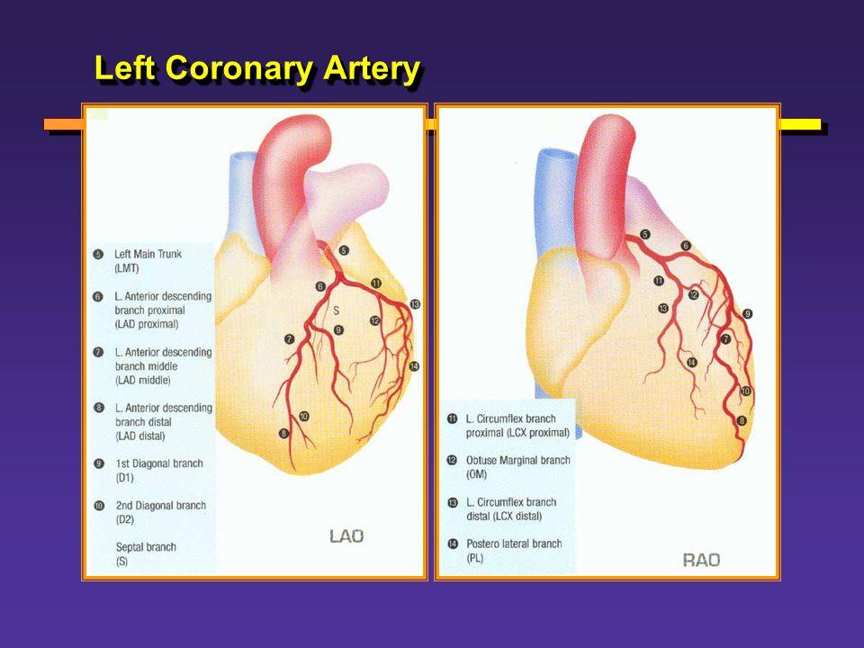 Left Coronary Artery