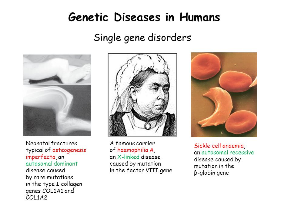 genetic disorder essay Genetic disorders essay example genetic disorders are caused by an abnormality it can range from a small mutation to a whole chromosome mutation there are 6,000 know genetic disorder, about every 1 out of 200 babies are diagnosed with a.