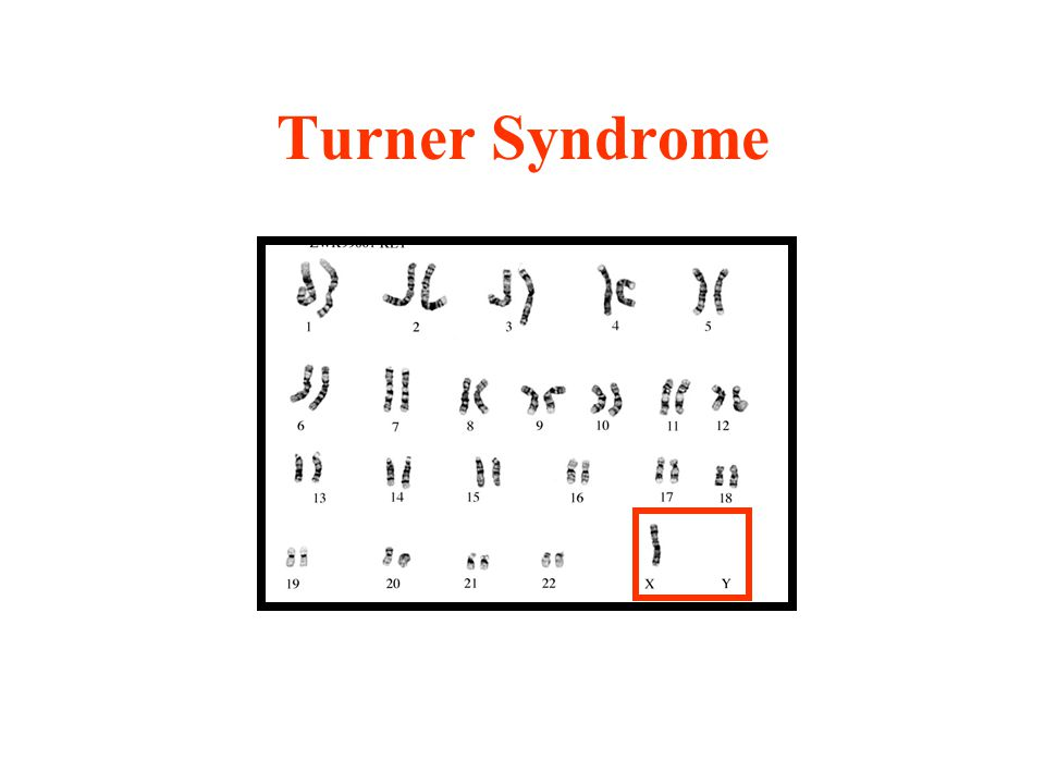 turner syndrome a chromosomal disorder that affects only females I need two genetic disorders that can only happen to males and their causes it is chromosomal another chromosomal disorder that only affects females is turner syndrome again.