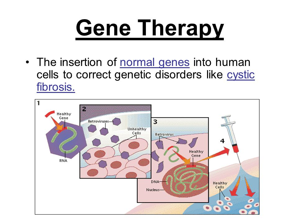 Gene Therapy The insertion of normal genes into human cells to correct genetic disorders like cystic fibrosis.