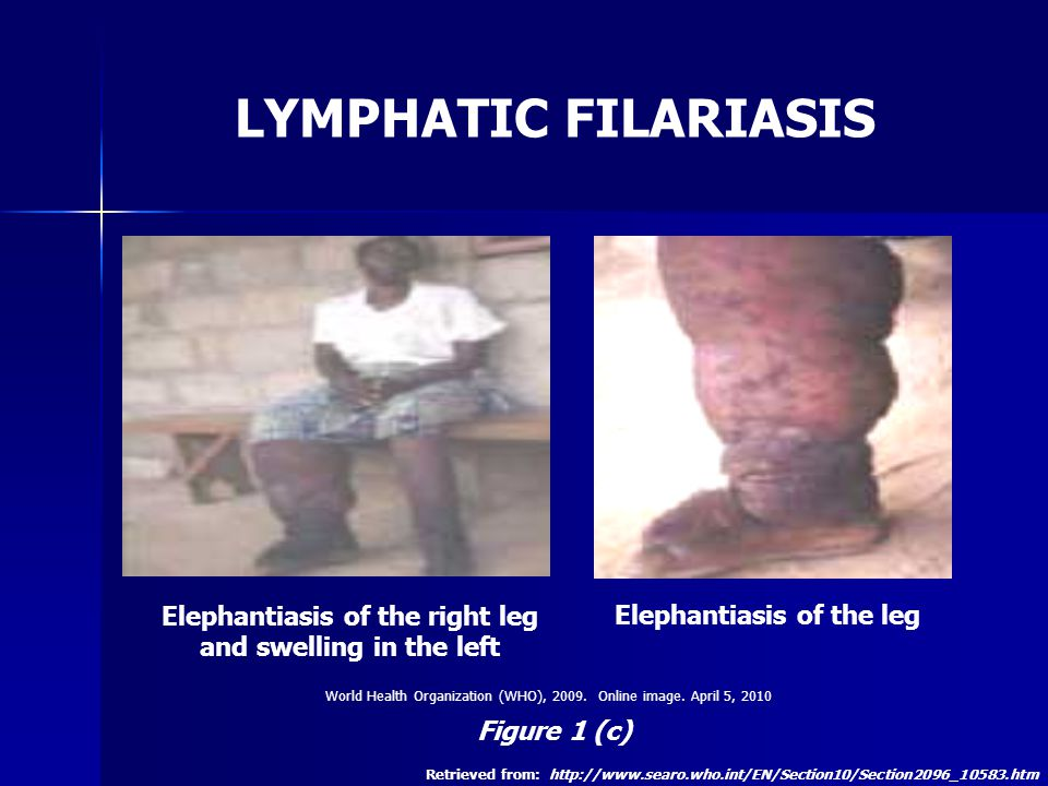 lymphatic filariasis aka elephantiasis Lymphatic filariasis (lf) or elephantiasis is one of the most debilitating and disfiguring scourge among all diseases it is a major public health problem in many south‐east.