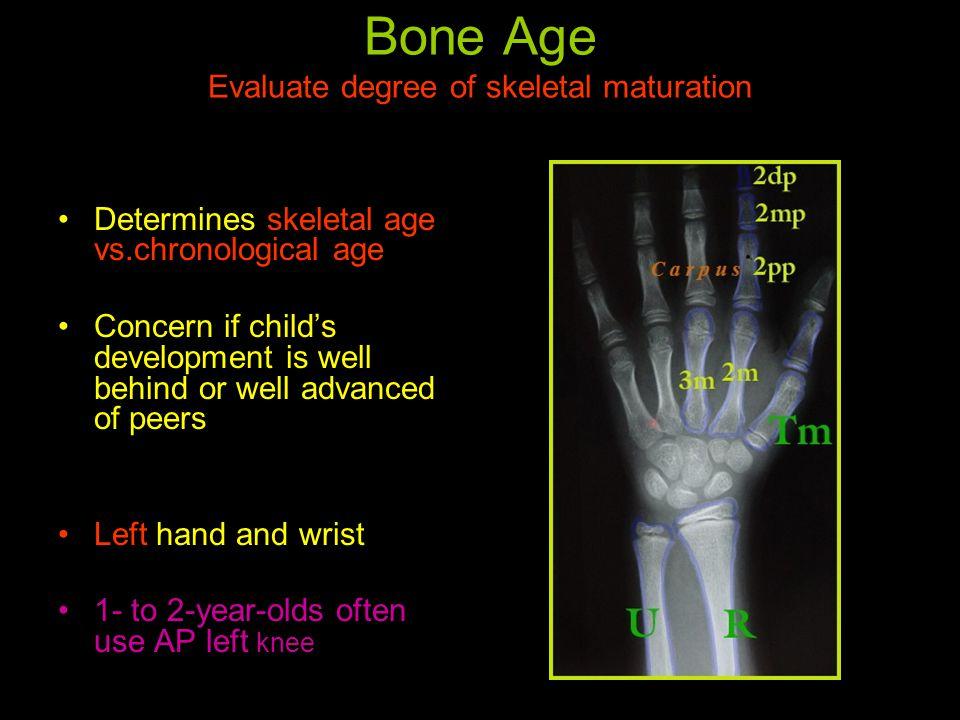 Bone age - Wikipedia