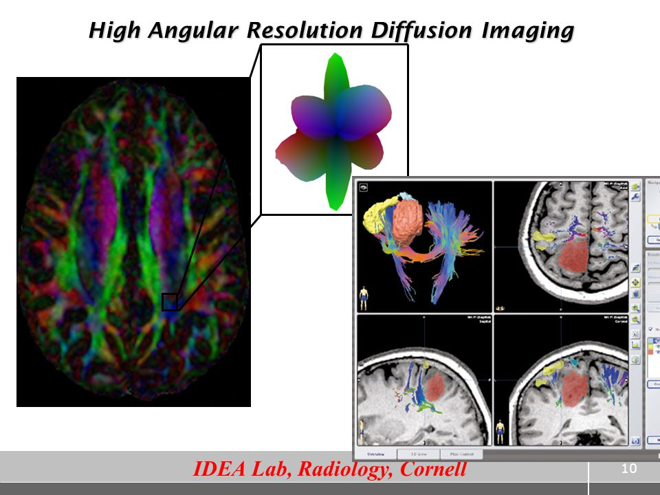 High Angular Resolution Diffusion Imaging