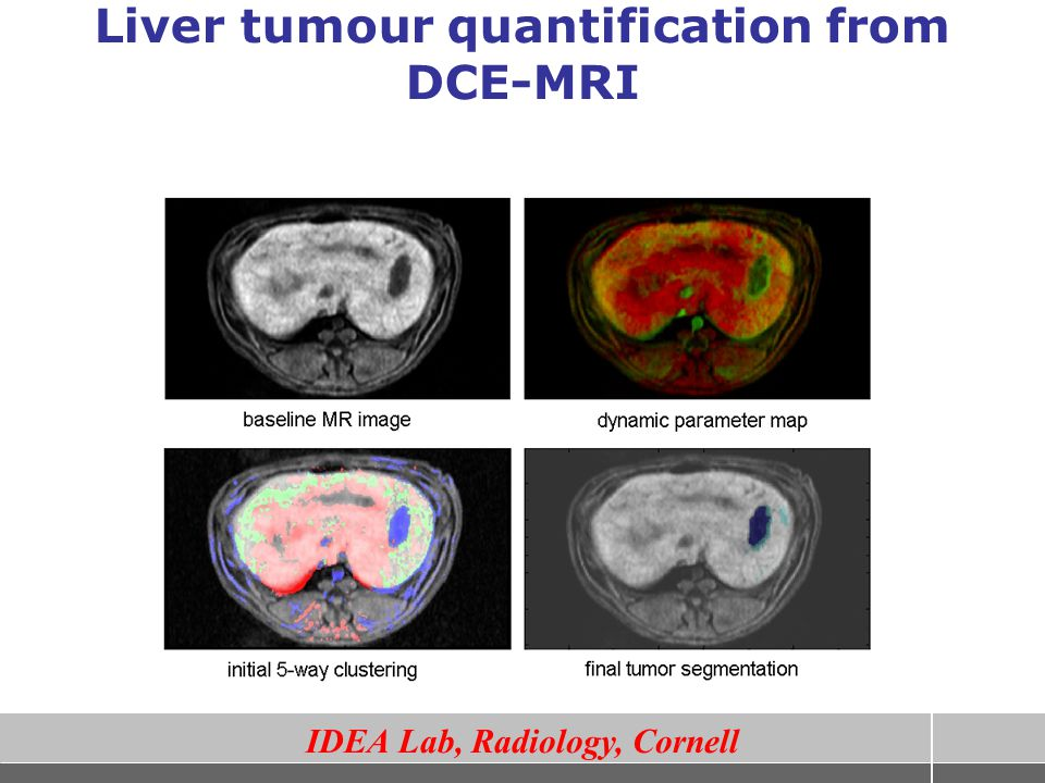 Liver tumour quantification from DCE-MRI
