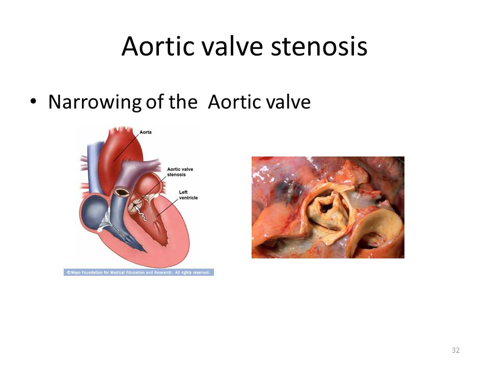 Aortic valve stenosis Narrowing of the Aortic valve