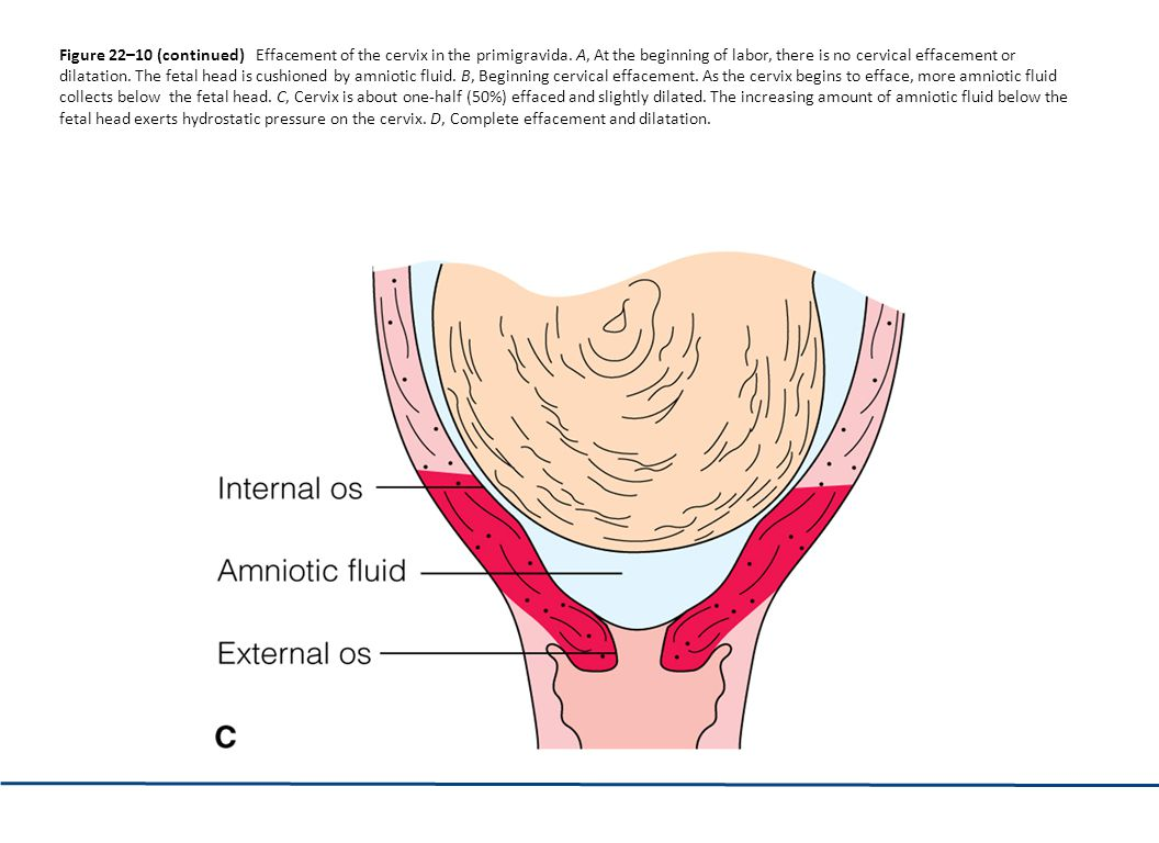 Nurs 1400 unit ppt download figure 2210 continued effacement of the cervix in the primigravida ccuart Gallery