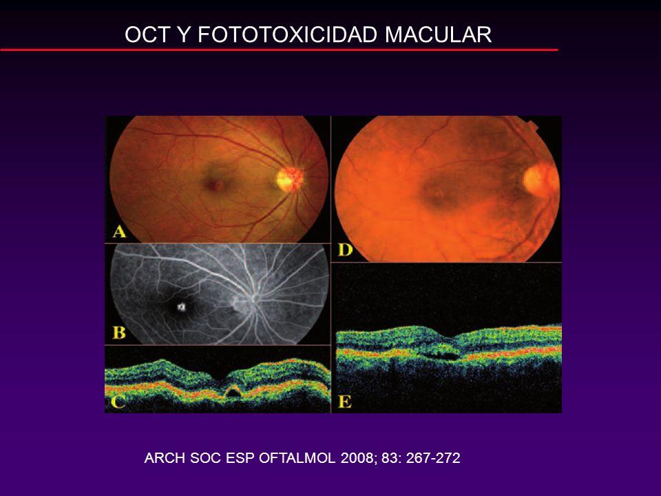 OCT Y FOTOTOXICIDAD MACULAR