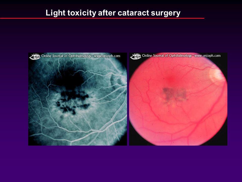 Light toxicity after cataract surgery