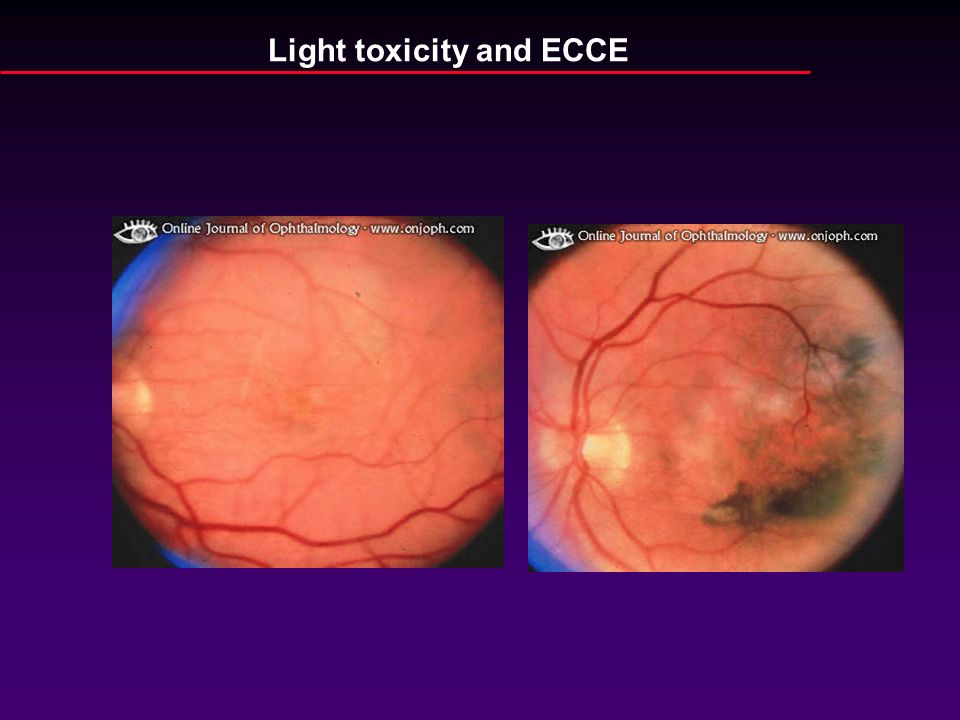 Light toxicity and ECCE