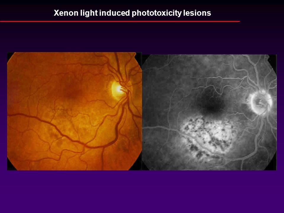 Xenon light induced phototoxicity lesions