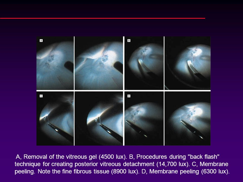 A, Removal of the vitreous gel (4500 lux)