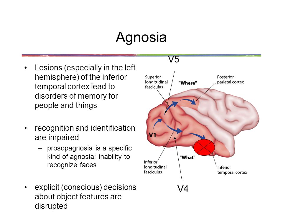Agnosia V5. Lesions (especially in the left hemisphere) of the inferior temporal cortex lead to disorders of memory for people and things.