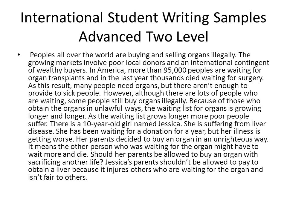 Internatinal students essay