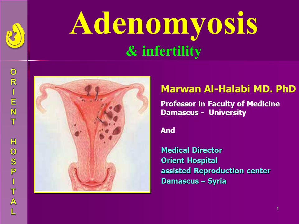 Adenomyosis & infertility Marwan Al-Halabi MD. PhD